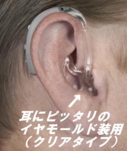 スポーツ補聴器 防水 汗湿気