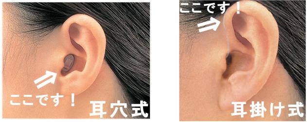 目立たない補聴器 超小型