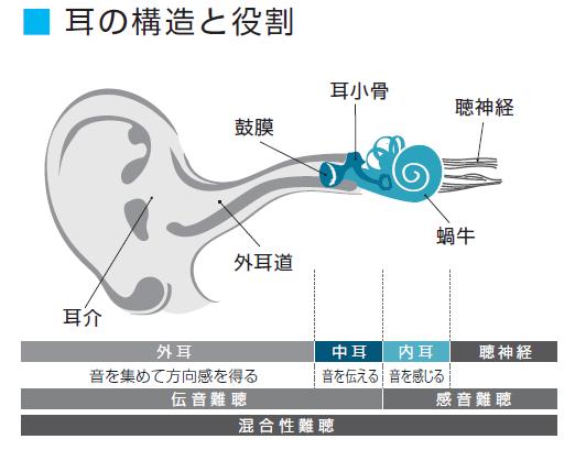 難聴 種類 補聴器選び